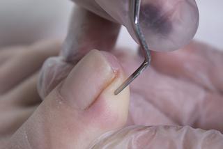 Вросший ноготь - лечение онихокриптоза