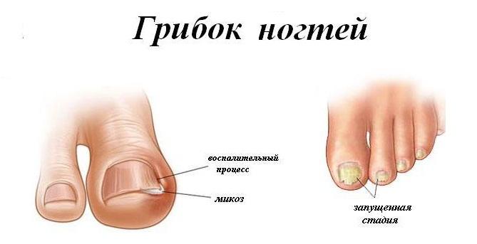 Грибок на пальце чем лечить в домашних условиях 78